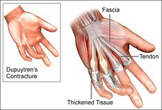 Dupuytren's contracture is a condition that gradually causes connective tissue (fascia) under the skin of your palm to thicken and become scarred-like. Although Dupuytren's isn't painful, it does restrict movement...