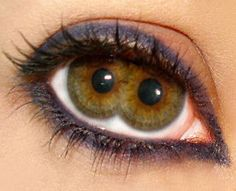"The Pupula duplex is a medical oddity that is characterized by having two irises/pupils in each eyeball. Pupula duplex is Latin for ""double pupil""."