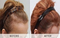 Are you seeking hair transplant surgery for a slightly receded hairline? Contact Hair Transplant Dubai clinic now for a customized advice. Hair Transplant Women, Hair Transplant Surgery, Fue Hair Transplant, Thin Hair Styles For Women, Natural Hair Styles, Hair Falling Out, Younger Skin, Hair Loss Remedies, Hair Serum