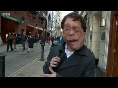 Adam Pearson is on a mission to explore disability hate crime - to find out why it goes under-reported, under-recorded and under people's radar. In this docu...
