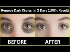 Treat Psoriasis and Get Results in 7 Days - Get Rid of Under Eye Dark Circle, Puffiness, Fine Lines in 1 Week Dark Circles Makeup, Eye Cream For Dark Circles, Dark Circles Under Eyes, Bumps Under Eyes, Dark Circle Remedies, Tarot Gratis, Beauty Tips For Glowing Skin, Beauty Skin, Images Wallpaper