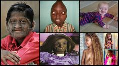There are an unfortunate number of people currently living around the world who are experiencing some of the rarest, weirdest diseases known to man. Some of these are probably unheard of by many of you.