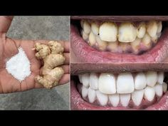 In two minutes, the white teeth whitening and globe such as pearls, this recipe / treatment at home Gym Workout Tips, Fitness Workouts, Health And Beauty Tips, Health Tips, Health Remedies, Home Remedies, Teeth Health, Teeth Care, Skin Care