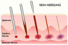 skin-needling