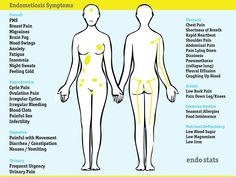 Symptoms of endometriosis-painful periods, painful sex, painful bowel movements, infertility, fatigue. Endometriosis Symptoms, Endometriosis Awareness, Chronic Fatigue Symptoms, Chronic Fatigue Syndrome, Chronic Illness, Chronic Pain, Fibromyalgia, Pcos, Endometriosis Quotes