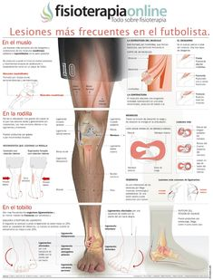 Read more about my knee pain home remedy Postural, Body Anatomy, Med Student, Sports Medicine, Knee Injury, Medical Science, Anatomy And Physiology, Knee Pain, Pilates Workout