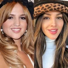 Nose Plastic Surgery, Celebrity Plastic Surgery, Nose Surgery, Nose Fillers, Bulbous Nose, Pretty Nose, Nose Reshaping, Rhinoplasty Before And After, Rhinoplasty Surgery