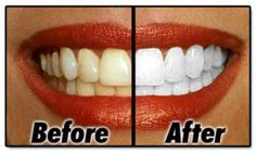 Whiter Teeth - Visit http://www.pricecanvas.com/health/teeth-whitening-products/ For Teeth Whitening Products.