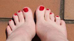 Fünf Tipps gegen Fußpilz