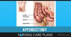 4 Appendectomy Nursing Care Plans