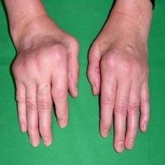 Best Diet For Arthritis And Bursitis
