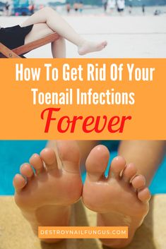 Nail Fungus Treatment Advertised On Tv - Healthy Nails Fingernail Fungus, Nail Treatment, Get Rid Of Ringworm, How To Tr, Nail Infection, Ingrown Toe Nail