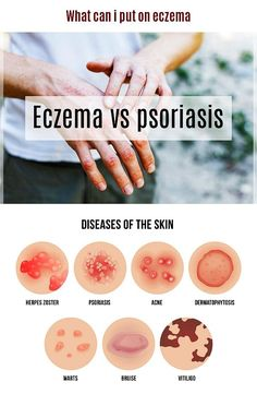 Eczema is a relatively rare skin condition that involves a lot of itching and i What Is Psoriasis, Psoriasis On Face, Psoriasis Causes, Plaque Psoriasis, Psoriasis Remedies, Sin Gluten, Inverse Psoriasis, Per Diem