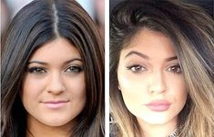 There's been plastic surgery rumors on Kylie Jenner over the past year. Before and after show her nose job, lip injections, Botox, and breast implants. Kylie Jenner Plastic Surgery, Celebrity Plastic Surgery, Kardashian Plastic Surgery, Cheek Implants, Lip Augmentation, Eyebrow Lift, Kyle Jenner, Lip Injections, Lip Fillers