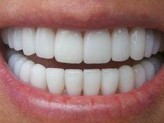 Λεύκανση των δοντιών και αντιμετώπιση της περιοδοντίτιδας με δύο κοινά βότανα