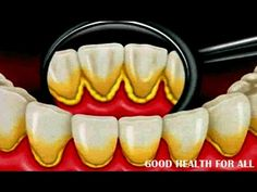 How To Remove Dental Plaque In 5 Minutes Naturally   Without Going To Th...