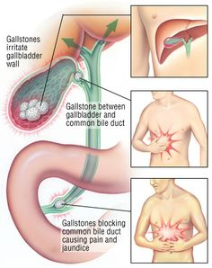 Gallstones form when cholesterol and other things found in bile make stones. They can also form if the gallbladder does not empty as it should. People who are overweight or who are trying to lose weight quickly are more likely to get gallstones. Gallbladder Surgery, Gallbladder Diet, Gallbladder Attack, Health Remedies, Home Remedies, Natural Remedies, Homeopathic Remedies, Young Living Oils, Young Living Essential Oils