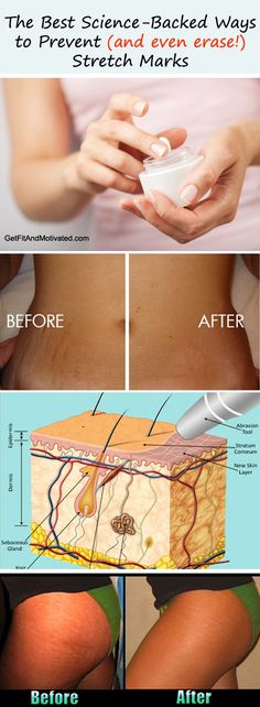What REALLY Causes Stretch Marks, Plus the Best Science-Backed Ways to Prevent (and even erase!) Stretch Marks