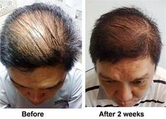Nutriol Hair Fitness Treatment- Before/After picture.  For more information contact Lauren at staybeautiful.nuskin@gmail.com.