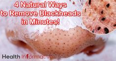 The only difference between blackheads and whiteheads is whether or not the pore is open or closed... how to get rid of blackheads naturally...