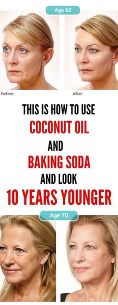 This Is How To Use Coconut Oil And Baking Soda To Look 10 Years YoungerIf you have issues with wrinkles and sagging facial skin, do now not worry. Beauty Secrets, Beauty Hacks, Beauty Tips, Diy Beauty, Beauty Makeup, Homemade Beauty, Natural Face Cleanser, Natural Skin, Coconut Oil Face Cleanser