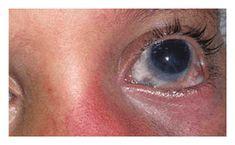 OPTIVISION Omega 3, Pink Eyes, Visual Impairment, Eyes