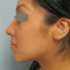 Beverly Hills Nose Reshaping surgeon Specialist, Beverly Hills rhinoplasty (nose job) surgeon provides his expertize in beverly hills for nose surgery or rhinoplasty or nose reshaping  http://www.vgplasticsurgery.com/beverlyhillsnosesurgery.htm