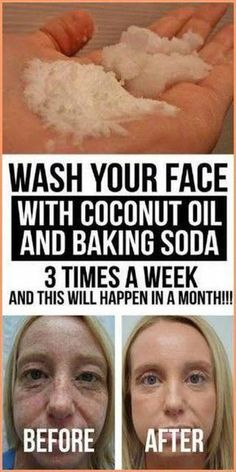 This Is How To Use Coconut Oil And Baking Soda To Look 10 Years Younger - Care - Skin care , beauty ideas and skin care tips Baking Soda Coconut Oil, Baking Soda Mask, Baking Soda Shampoo, Baking Soda Uses, Natural Facial Cleanser, Natural Face, Face Cleanser, Natural Beauty, Facial Cleansers