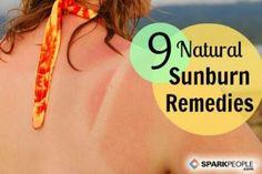 9 Natural Sunburn Remedies via @SparkPeople