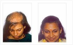 Hair Regrowth Results Visit http://www.enhanceclinics.in/hairlossmain for more.