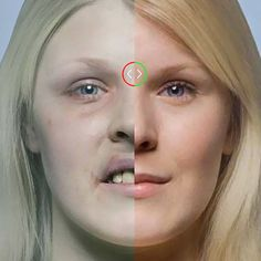 Devastating Consequences for Smoking Twin - A photographer has lined up twins to reveal the damaging effects smoking has on people. Use the interactive website to examine various parts of the affected anatomy more closely. @MYanatoMY Blog