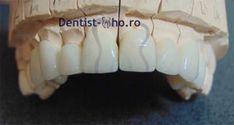 coroana zirconiu | estetica dentara