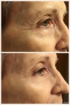 Instantly Ageless - Visibly diminishes the appearance of fine lines and wrinkles. - Erases the appearance of puffiness under the eyes. - minimizes the appearance of pores. - Mattes skin for a flawless finish. - Restore skin to optimum appearance. contact Jeunesse Caribe +17874729497 or jeunessecaribe@outlook.com. #jeunesse #instantlyageless #nowrinkles #nopuffyeyes