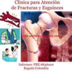 Clínica especializada en atención de fracturas en niños WWW.unidadortopedia.com