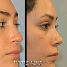 Paranasal Sinuses, Chin Implant, Rhinoplasty Before And After, Facial Tips, Goth Aesthetic, Respiratory System, Funny Clips, Plastic Surgery, Gw