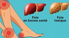 16 signs your liver is over-burden with poisons Remedies Sistema Gastrointestinal, Sante Bio, Uplifting News, Healthy Liver, Science And Nature, Acupuncture, Weight Gain, Nutrition, Antonio Solis