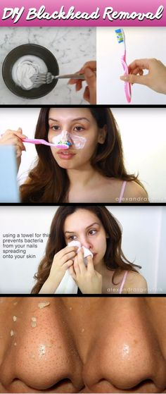 How She Gets Rid Of Her Blackheads With a DIY Mask and Toothbrush is Simply Amazing!
