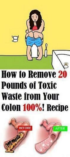 How To Remove 20 Pounds Of Toxic Waste From Your Colon!!! - Way to Steal Healthy