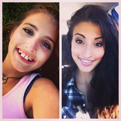Girl shares incredible before-and-after photo of her jaw transformation (what a great attitude)