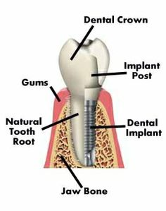 Dental Care West specialises in providing the best dentist and orthodontic services in West Auckland
