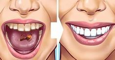 Tartar stains on your teeth can lead to several problematic issues resulting in weak teeth and even teeth loss in early age. Here are 10 helpful and proven natural remedies to get those ugly tartar stains removed from your teeth. Detox Drink Before Bed, Drinks Before Bed, Tartar Removal, Limpieza Natural, Bebidas Detox, Fat Burning Detox Drinks, Natural Teeth Whitening, Lemon Essential Oils, Detox Drinks