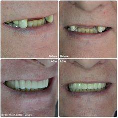 Dental Bridge to close the gap along the upper jaw. A total of 17 Zirconium Porcelain Crowns were included in this treatment plan. Dental Surgery, Dental Implants, Porcelain Crowns, Teeth Whitening Diy, Dental Veneers, Smile Makeover, Dental Bridge, Smile Design, Dental Crowns