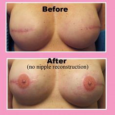 3D nipple tattoos as a part of the reconstruction after a mastectomy. Incredible talent used for an awesome purpose.