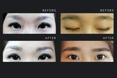 Korean Eyebrow Embroidery | Nouri Face and Body Concepts