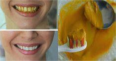 Protège ta santé: Savez vous que vous pouvez blanchir vos dents naturellement et rapidement en utilisant le curcuma ? Voici la recette.