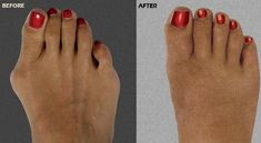 Our Silicone Hammer Toe Corrector will moves your toe back to the natural position. Also help keep your toes in place and prevent rubbing and pressure. Hammer Toe Correction, Posture Correction, Cosmetic Foot Surgery, Lower Back Ache, Gel Toe Separators, Bunion Relief, Bow Legged, Gel Toes, Muscle Imbalance