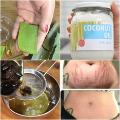 Oil for stretch marks - Homemade Oil For Stretch Marks Remove Them Permanently Works Page 2 of 5 Green Life Nature Stretch Mark Remedies, Stretch Mark Removal, Beauty Care, Beauty Skin, Health And Beauty, Diy Beauty, Beauty Hacks, Beauty Ideas, Beauty Secrets