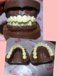 Japanese dentistry student makes chocolate teeth for Valentine's Day