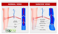 Varicose veins are a common problem in which abnormally enlarged veins appear close to the skin's surface. They usually occur in the calves and thighs when the veins develop weakened walls or poorly functioning valves, which regulate blood flow. According to the U.S. Department of Health and Human Services, varicose veins affect an estimated 25 …