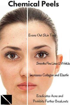 Chemical Peeling For Acne Scars, Acne, Skin & Face in Dubai, Abu Dhabi Mary Kay, Facial Scars, Dermal Fillers, Lip Fillers, Botox Fillers, Home Remedies For Acne, Acne Remedies, Even Out Skin Tone, Chemical Peel